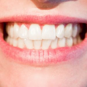 Enamel Building Toothpaste - How It Can Help You Have Stronger Healthier Teeth